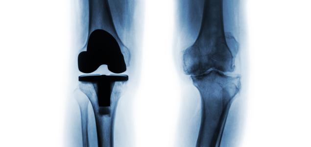 tratamentul osteonecrozei genunchiului