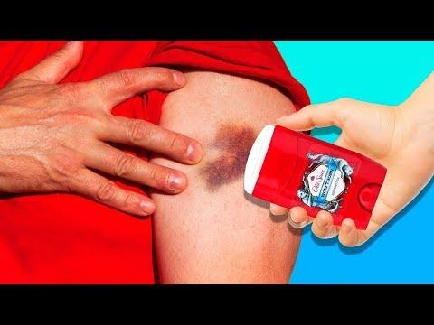 problema articulației genunchiului
