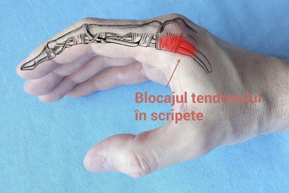 de ce durează genunchii în articulații