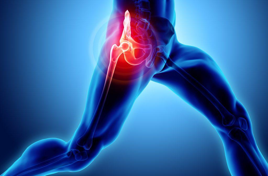 articulațiile umflate ale tratamentului degetelor ce geluri pentru dureri articulare