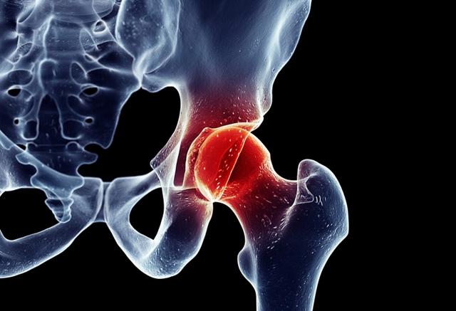 dureri de vânătăi în articulația șoldului