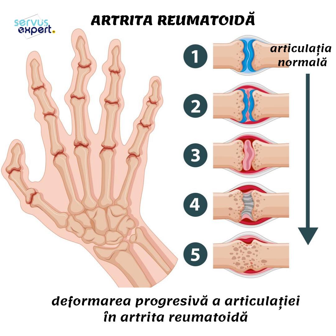 ameliorarea durerii pentru artrita articulației umărului