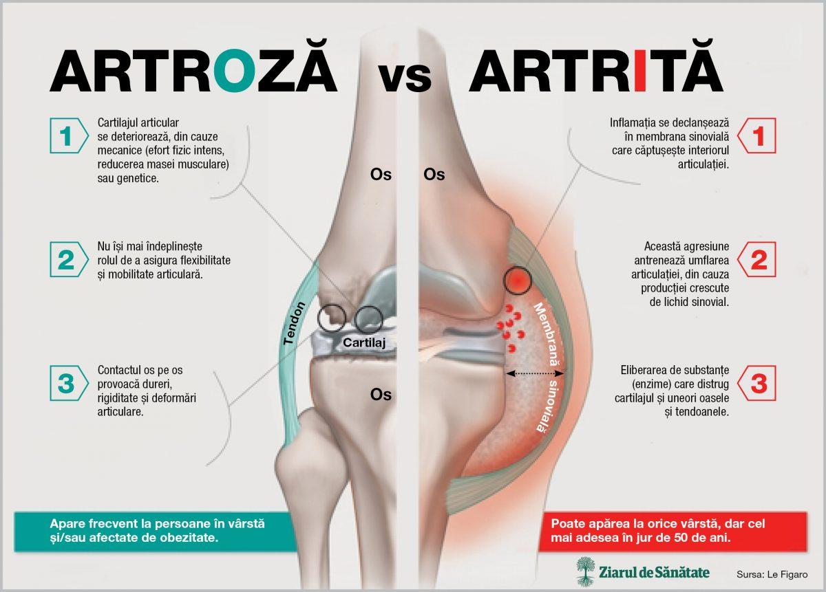 diferența de artroză de artrita bolii articulare leziuni musculare ale articulației gleznei