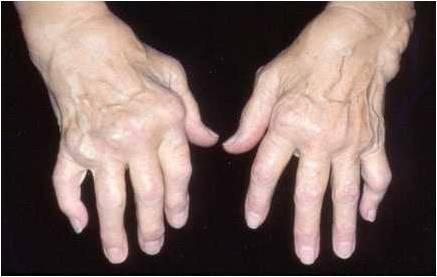 artrita articulațiilor degetului desenând dureri în articulația umărului stâng