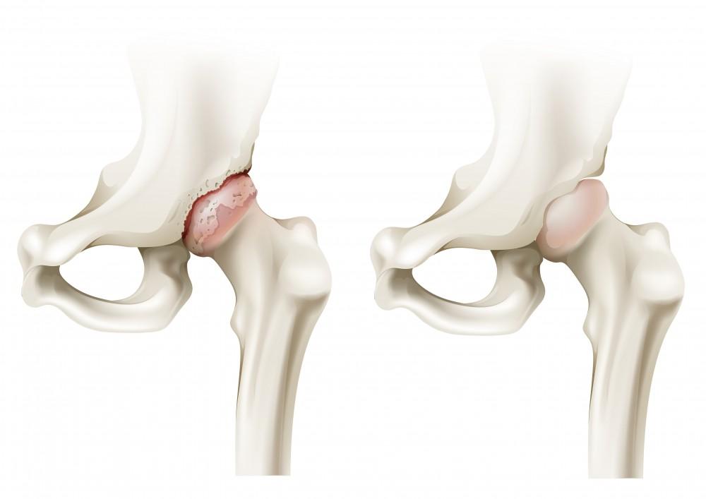 durere în articulațiile picioarelor brațului