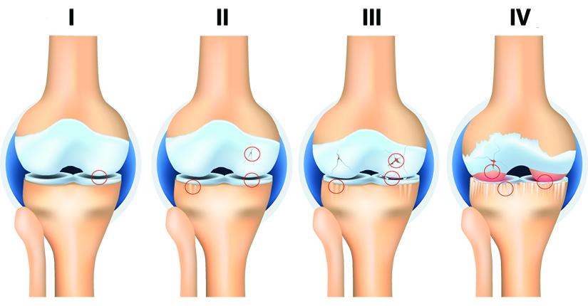 atac de artroză la genunchi