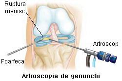 ruperea meniscului articulației genunchiului