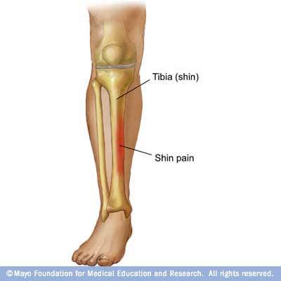 articulațiile doare după ce alerga ce să faci artra glucosamină condroitină