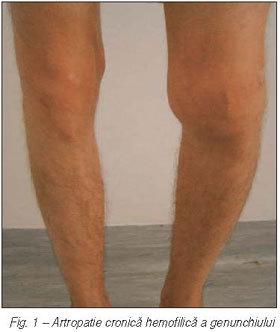 hemartroza genunchiului în caz de tratament cu leziuni articulațiile picioarelor doare constant