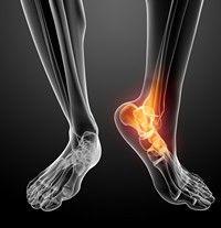 tratamentul post-traumatic al artrozei gleznei