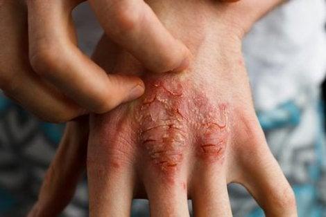 frecvența leziunilor articulare în artrita psoriazică dureri musculare și articulare după docetaxel