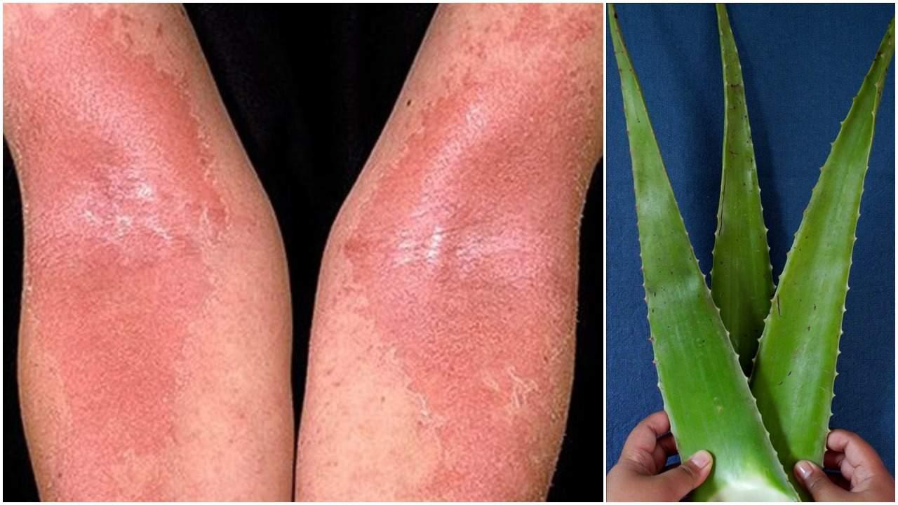 osteoporoză și durere în articulația genunchiului cum să tratezi artrita reumatoidă la picioare