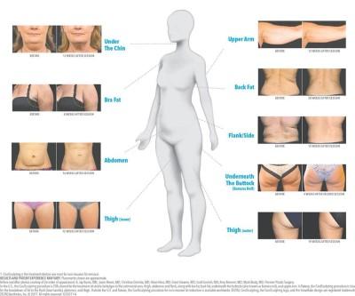 îngheța genunchii durere de mers în articulații și mușchi