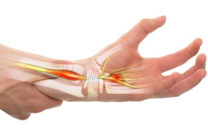 boala oaselor mâinilor Pot să mă ghemuiesc cu artrita genunchiului