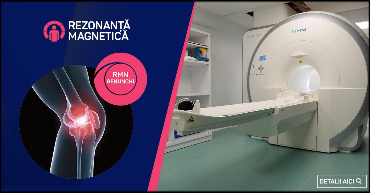 tomografie computerizată a articulațiilor genunchiului