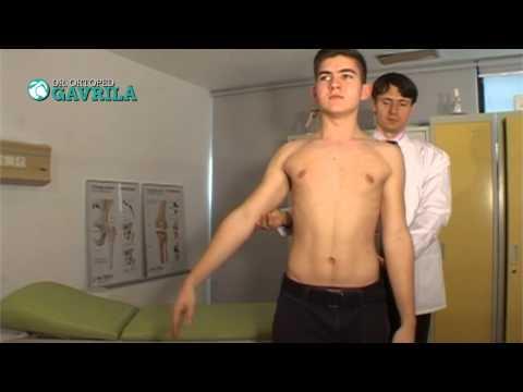 Sirdalud în tratamentul artrozei