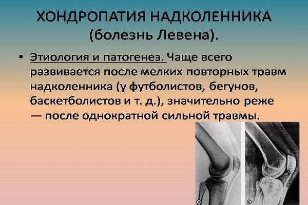 preparate pentru revizuirile articulațiilor și ligamentelor ce să faci dacă artroza genunchiului