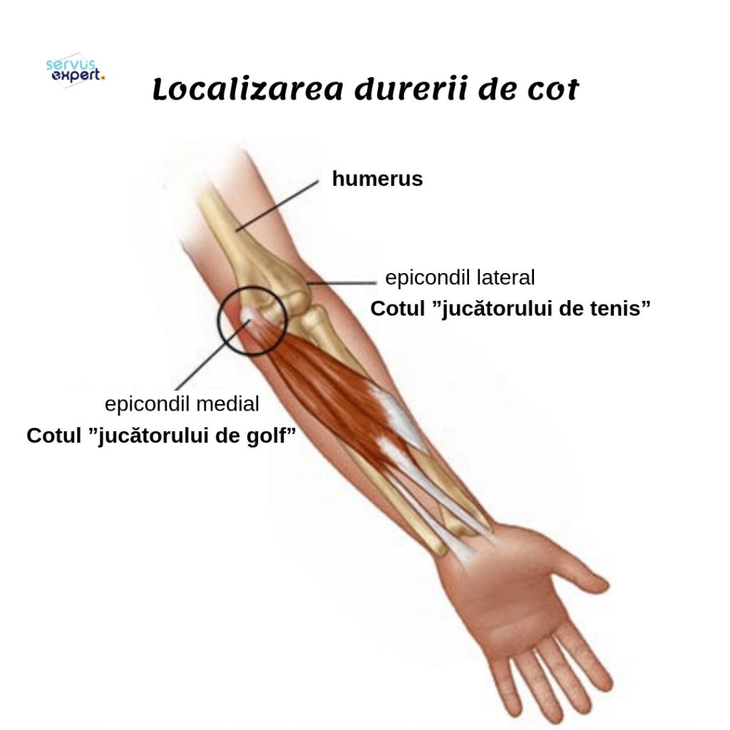dureri la nivelul brațului la nivelul articulației cotului