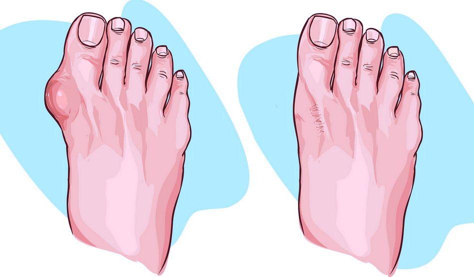 unguente pentru tratamentul artrozei degetului de la picior