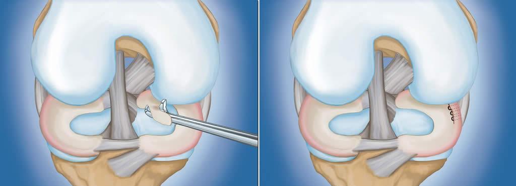 gel floresan articular Injecții cu ketorol pentru dureri articulare