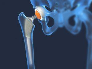 artroza articulației șoldului. tratamentul lui cum începe boala articulară