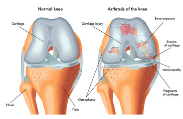 durere în articulația de sub picioare