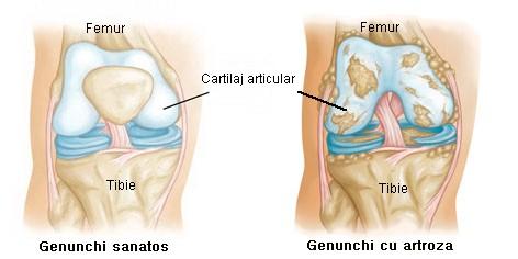 artroza progresivă a genunchiului recenzii pentru remedii comune