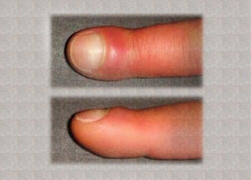 degetul dureros și umflat în articulație