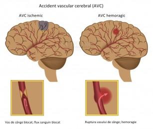 refacerea articulației umărului după un accident vascular cerebral