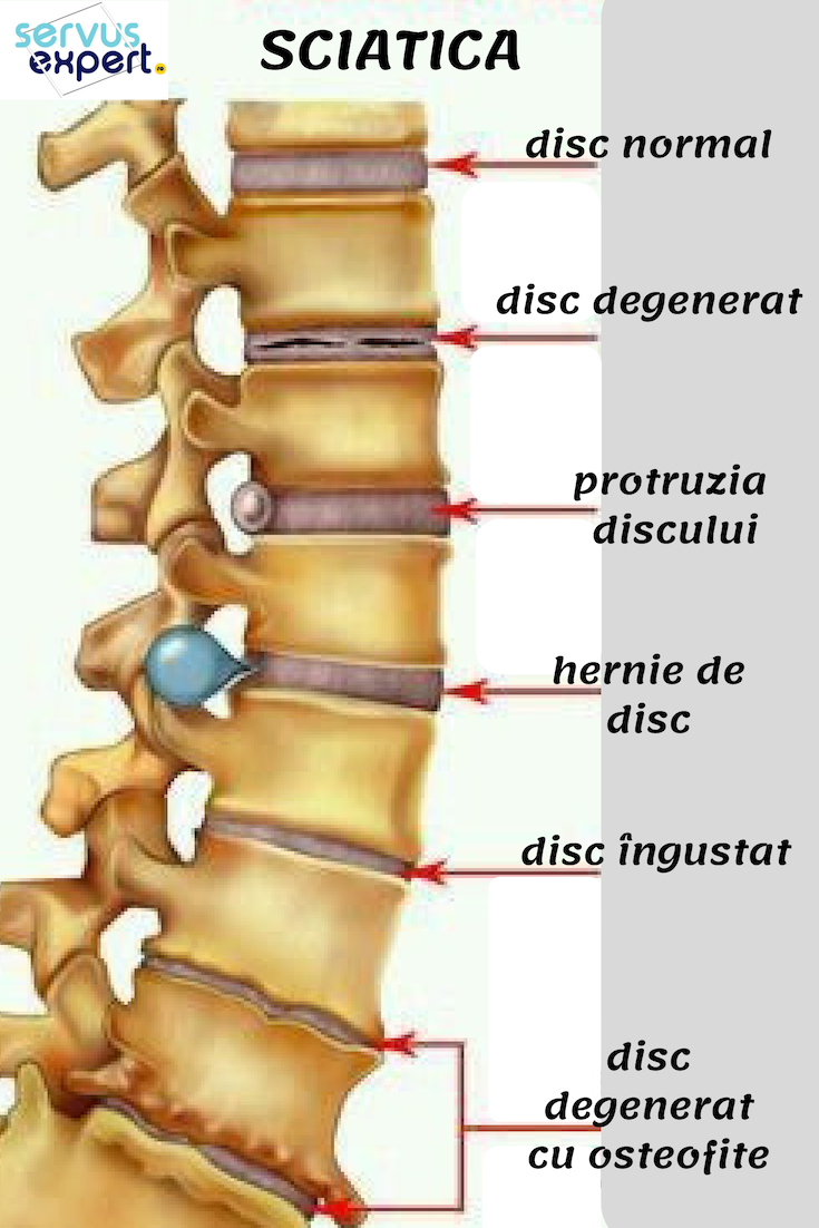artroza semnelor radiologice ale șoldului articulația șoldului către cine să meargă
