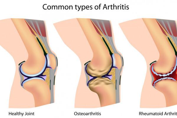 lichid în tratamentul articulației genunchiului