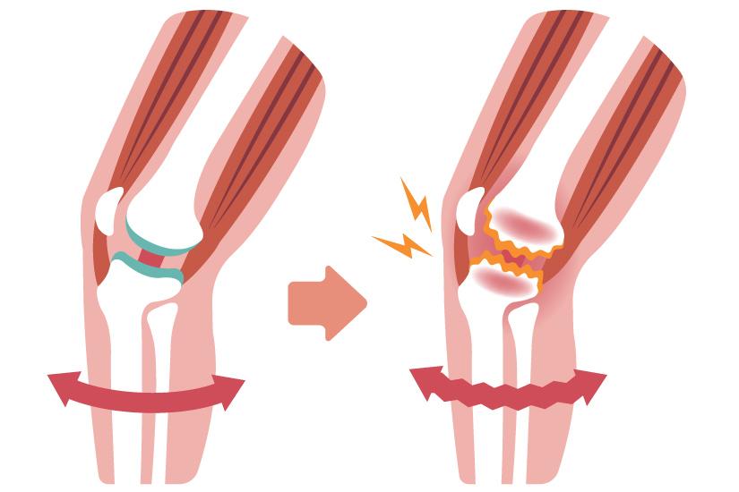medicamente pentru dureri de genunchi tratamentul prăbușirii articulațiilor genunchiului