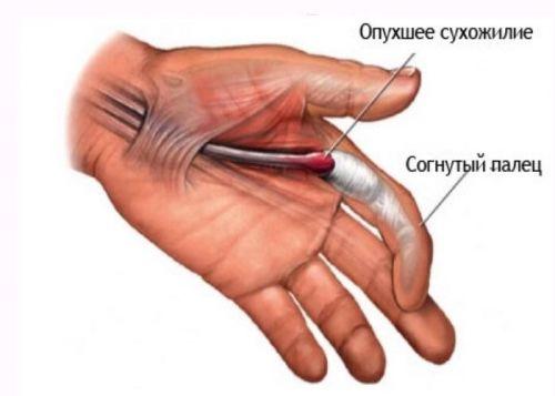 care este boala articulațiilor de pe degete artroza stadiului articular 1