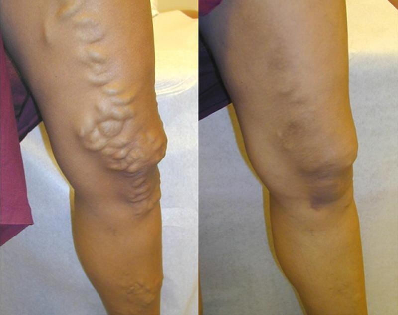 tratarea varicelor și articulațiilor