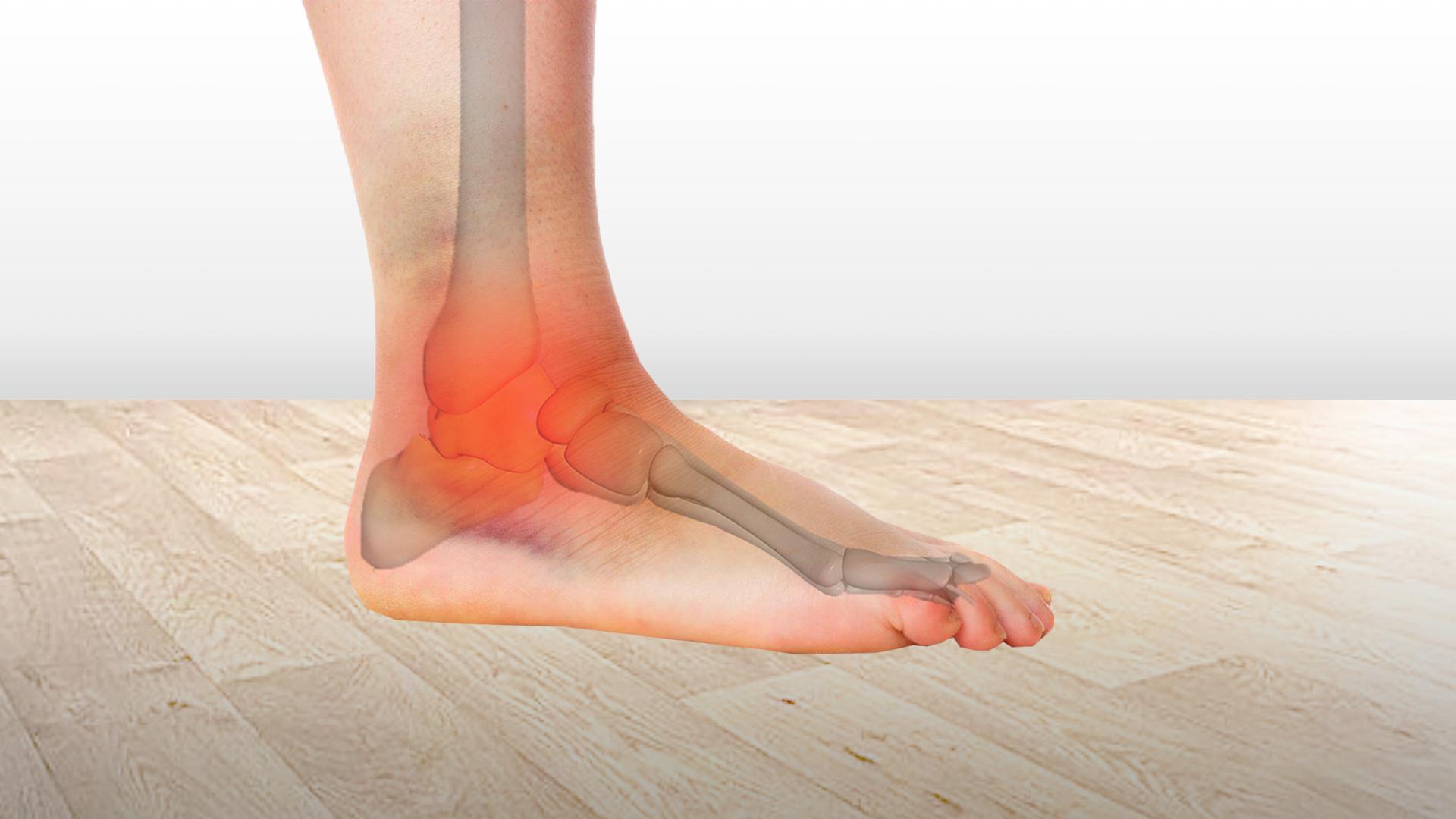 acțiuni pentru vătămarea gleznei inflamația articulației gleznei la nivelul piciorului