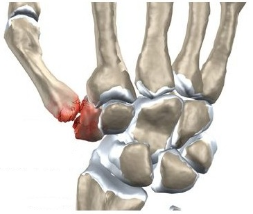 umflarea articulației degetului pe braț tratamentul eficient al artritei artrite
