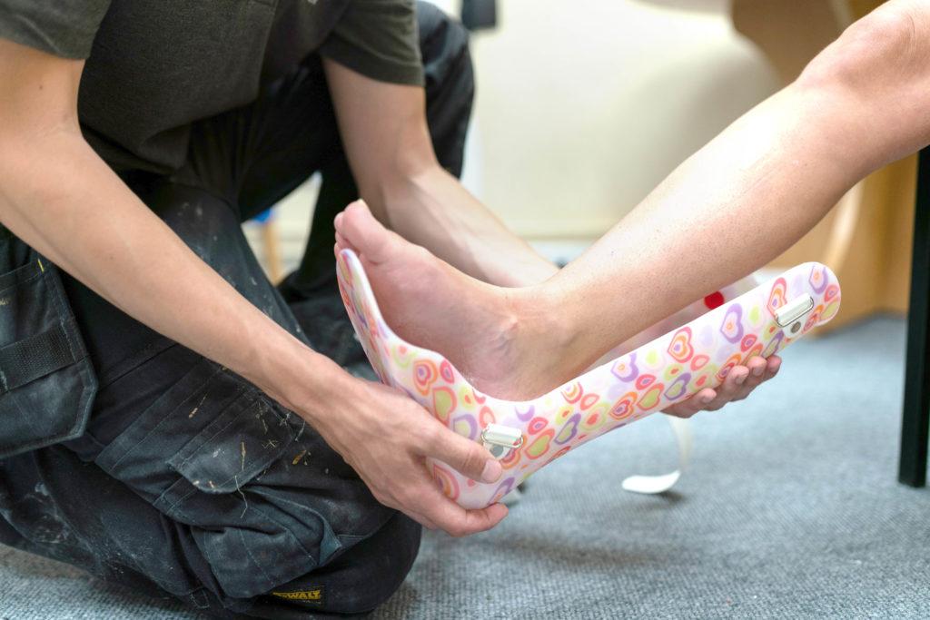 Sfaturi pentru o gleznă luxată sau fracturată - Medic Chat
