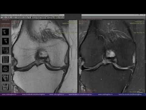articulațiile inflamației piciorului dacă genunchiul iese din articulație