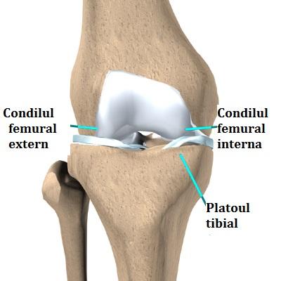 Endoprotezarea/artroplastia genunchiului - Terramed - Articulația artificială a genunchiului este
