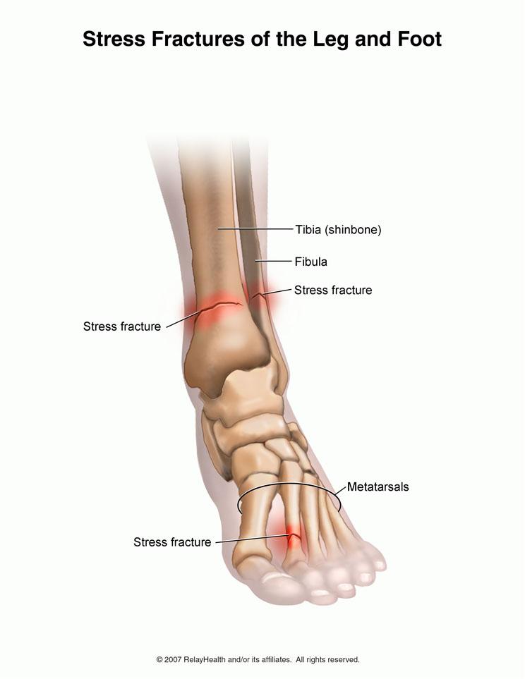 articulația doare după alergare tratați tendoanele articulației cotului