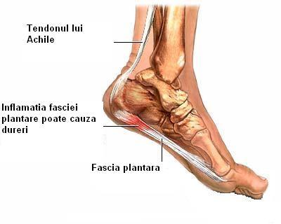 articulația doare după alergare artrita articulațiilor mici ale piciorului