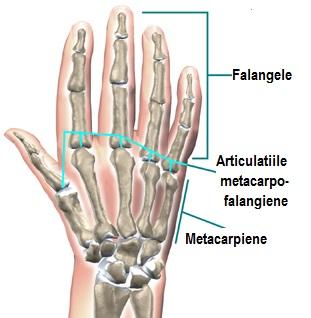 diagnosticul artrozei cum se tratează simptome ale bolii articulare pe braț