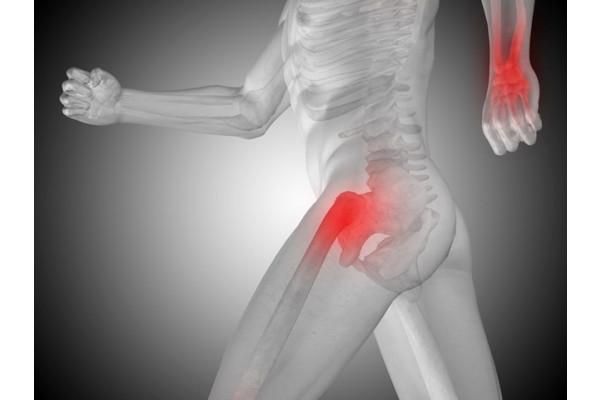 Anestezie pentru tratamentul artrozei