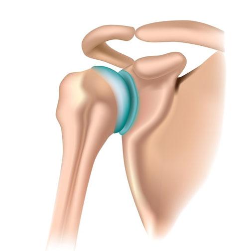 unguent de masaj pentru osteochondroza diagnosticul durerii articulare și a piciorului