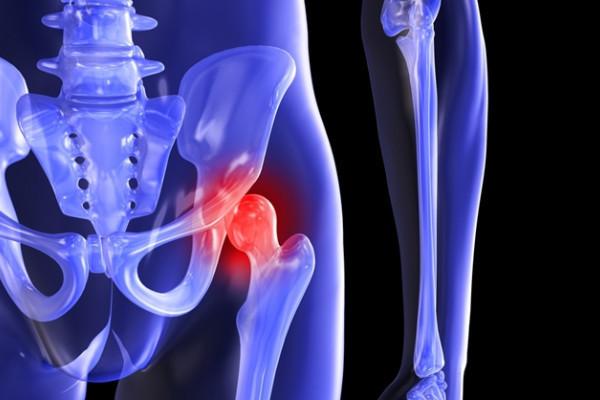 artroza blocului de șold