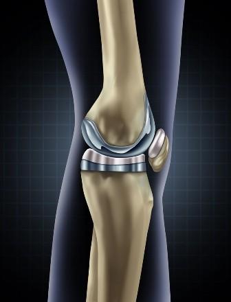 artroza progresivă a genunchiului cu o fractură de gleznă ce durere
