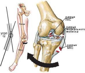 ruperea ligamentelor tratamentului articulației cotului