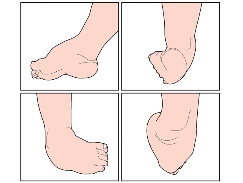 tratamentul leziunilor articulare ale piciorului durere în articulația umărului la ridicare