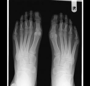 vitamine pentru artrita mâinilor