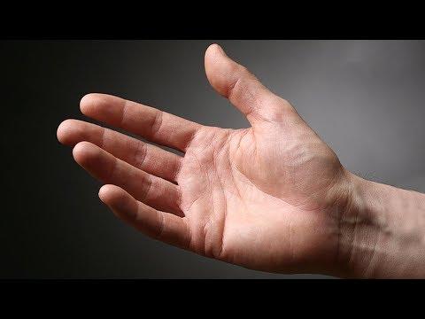 inflamația pungilor articulațiilor articulațiilor șoldului
